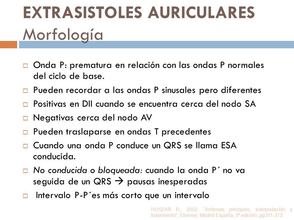 EXTRASISTOLES AURICULARES Morfología