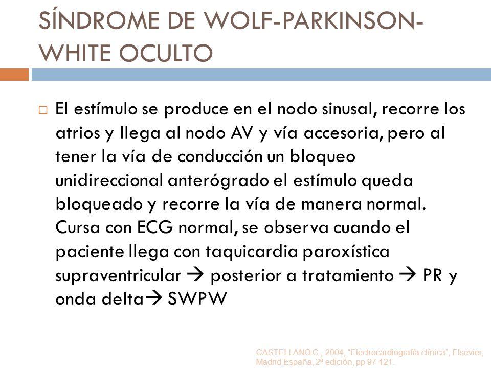 SÍNDROME DE WOLF-PARKINSON-WHITE OCULTO