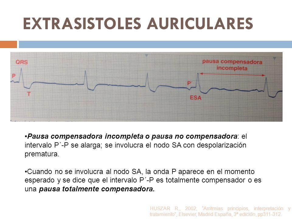 EXTRASISTOLES AURICULARES