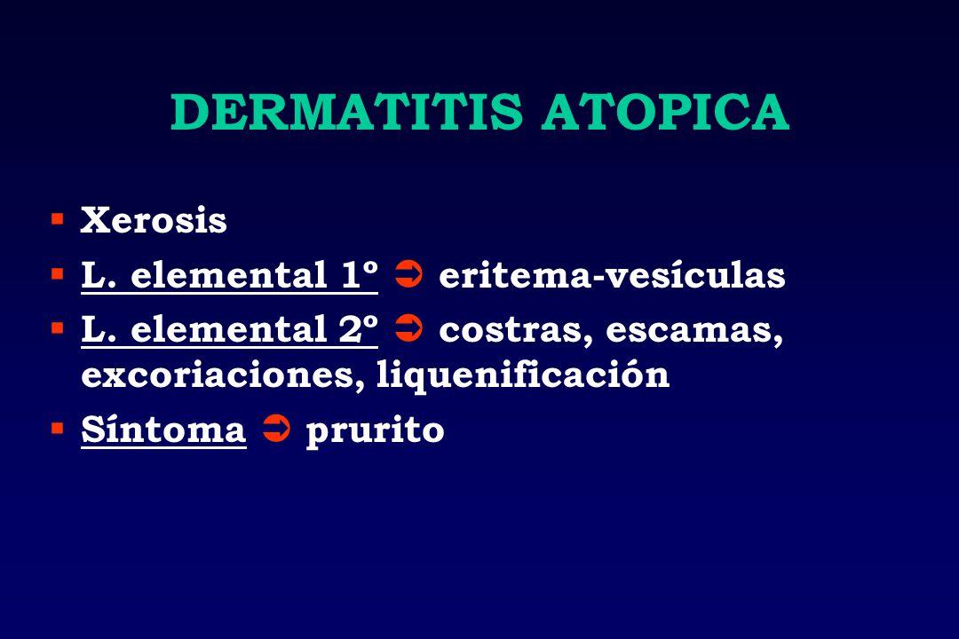 DERMATITIS ATOPICA Xerosis L. elemental 1º  eritema-vesículas