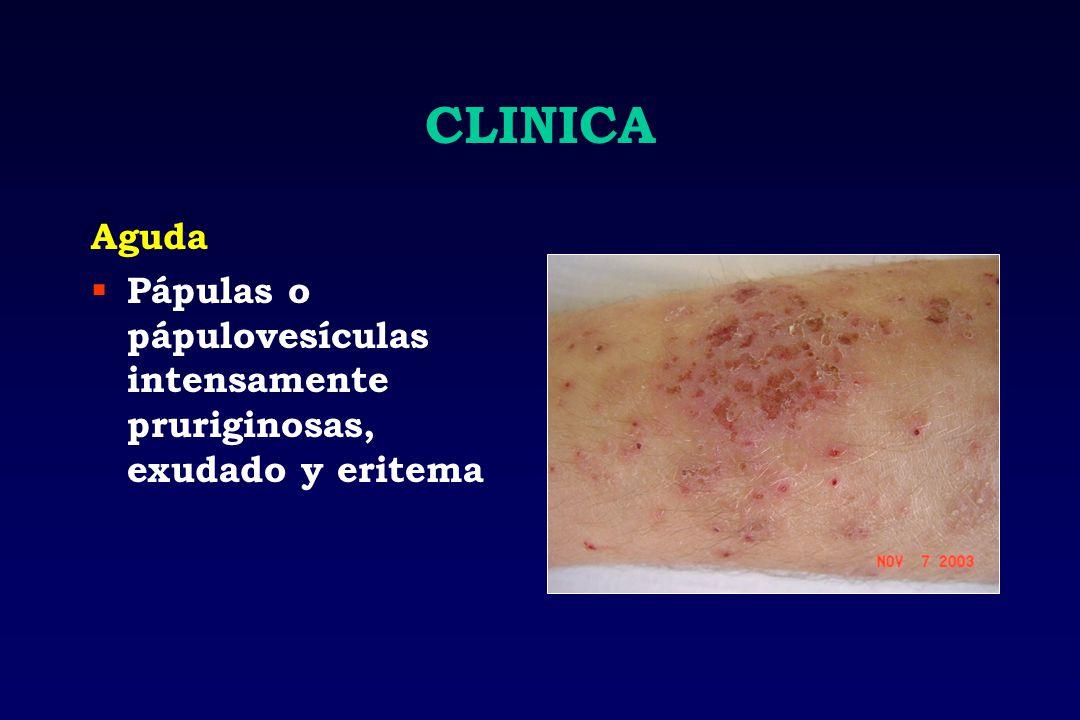 CLINICA Aguda Pápulas o pápulovesículas intensamente pruriginosas, exudado y eritema