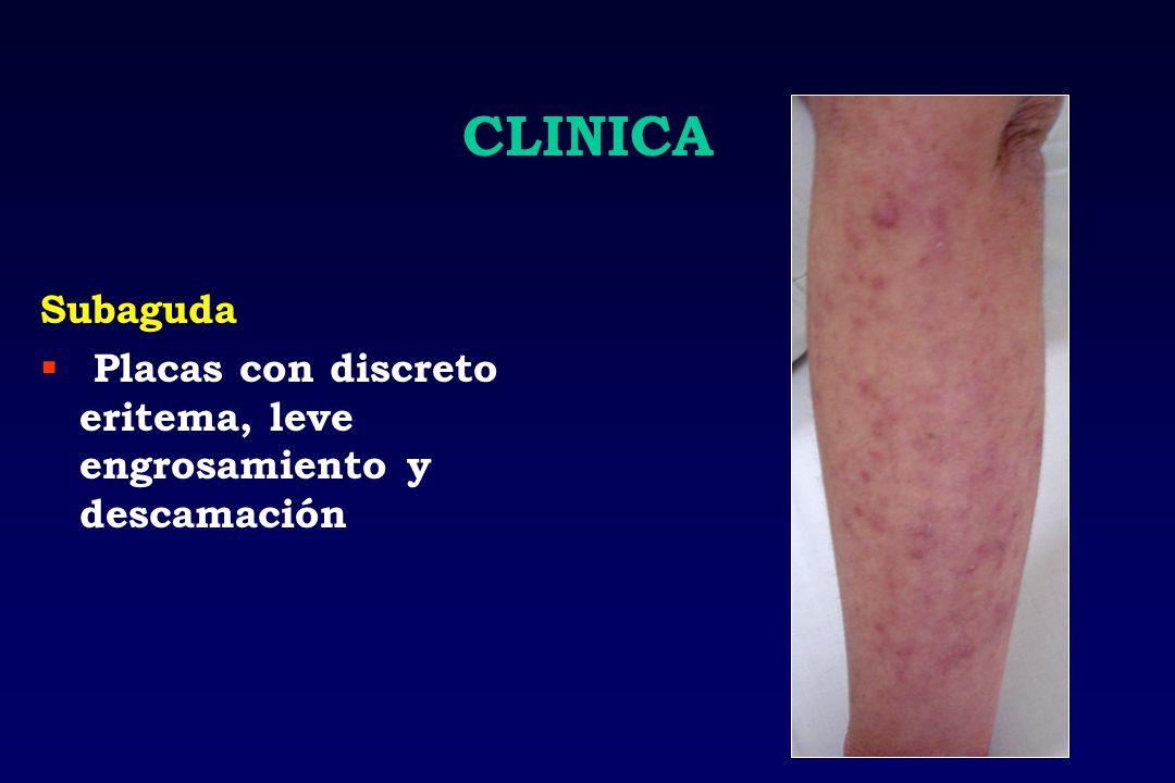 CLINICA Subaguda Placas con discreto eritema, leve engrosamiento y descamación