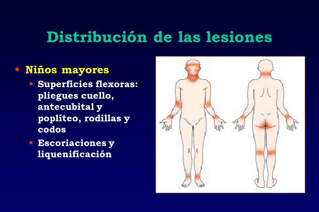 Distribución de las lesiones