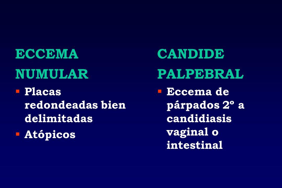 ECCEMA NUMULAR CANDIDE PALPEBRAL Placas redondeadas bien delimitadas