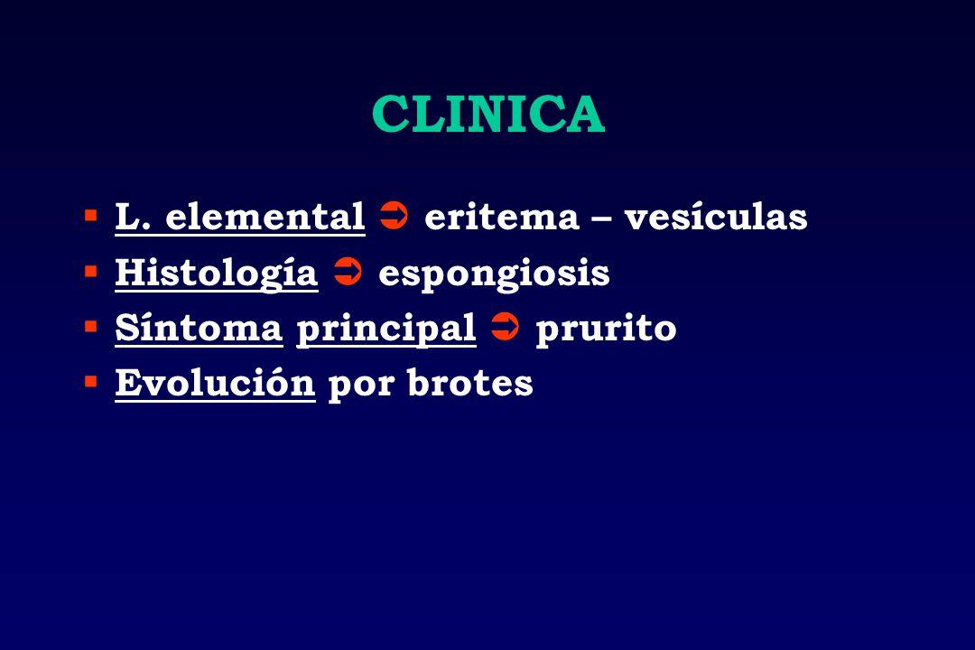CLINICA L. elemental  eritema – vesículas Histología  espongiosis
