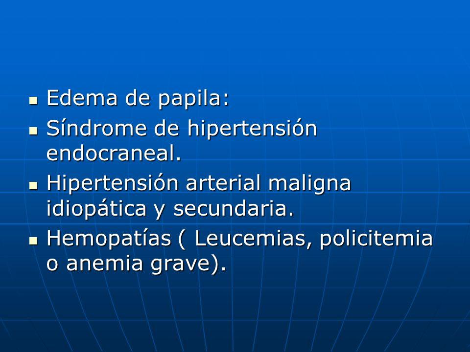 Edema de papila:Síndrome de hipertensión endocraneal. Hipertensión arterial maligna idiopática y secundaria.
