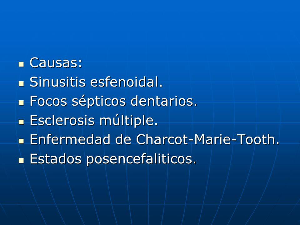 Causas:Sinusitis esfenoidal. Focos sépticos dentarios. Esclerosis múltiple. Enfermedad de Charcot-Marie-Tooth.