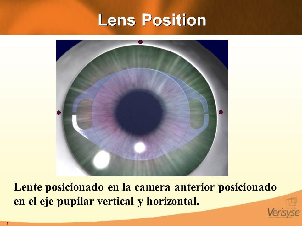 Lens Position Lente posicionado en la camera anterior posicionado en el eje pupilar vertical y horizontal.