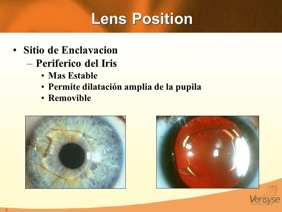 Lens Position Sitio de Enclavacion Periferico del Iris Mas Estable