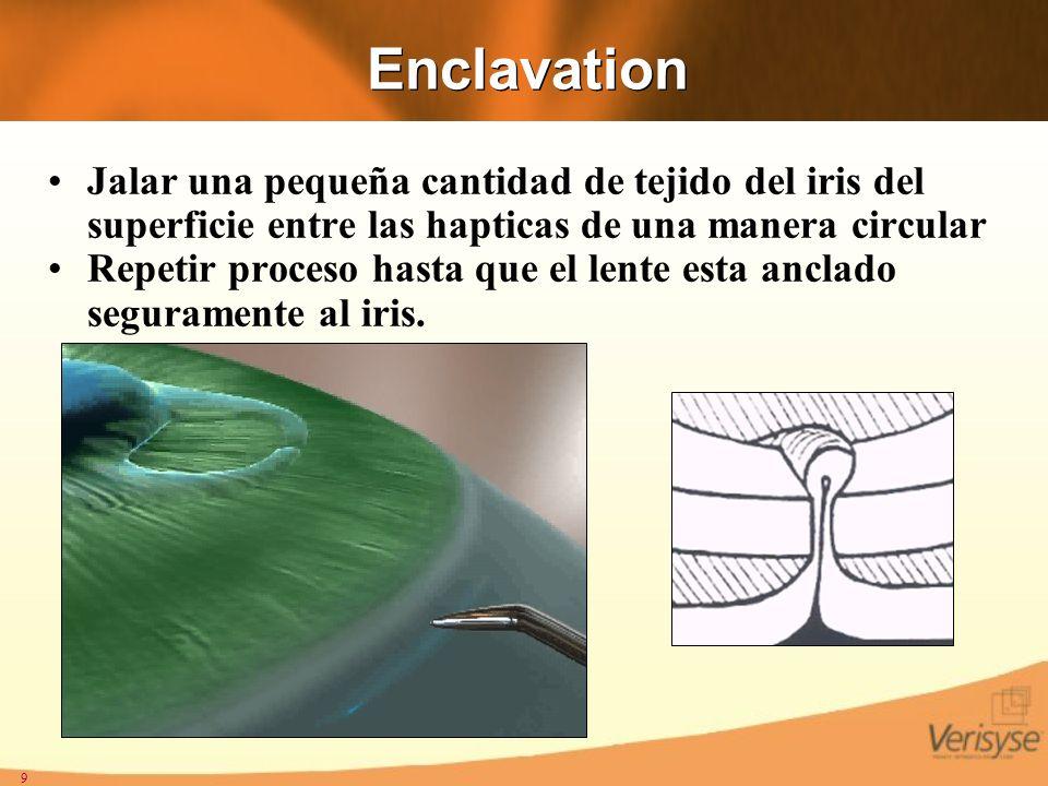 Enclavation Jalar una pequeña cantidad de tejido del iris del superficie entre las hapticas de una manera circular.