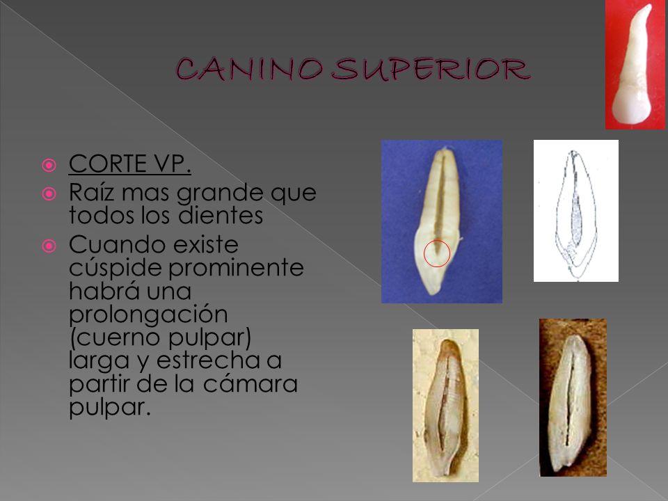 CANINO SUPERIOR CORTE VP. Raíz mas grande que todos los dientes