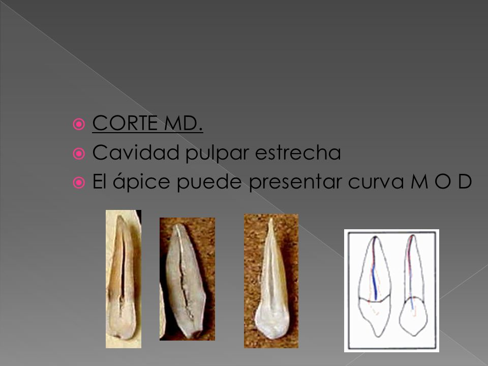 CORTE MD. Cavidad pulpar estrecha El ápice puede presentar curva M O D