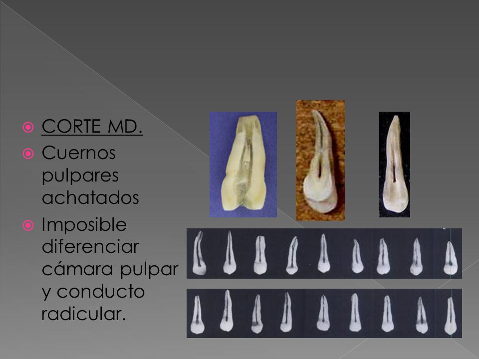 CORTE MD. Cuernos pulpares achatados Imposible diferenciar cámara pulpar y conducto radicular.