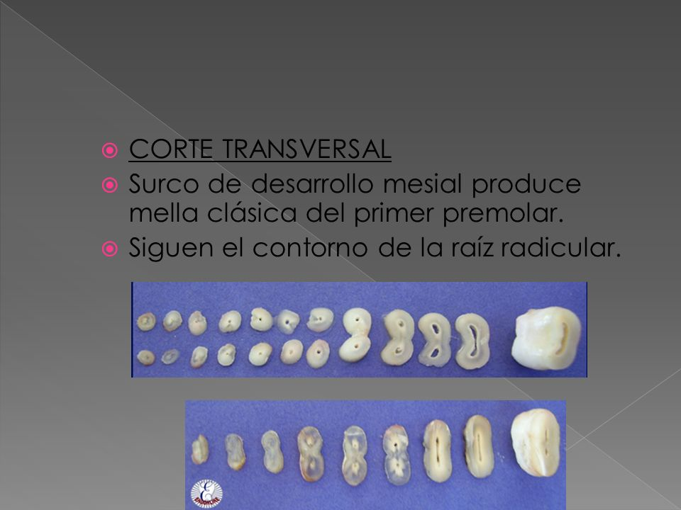 CORTE TRANSVERSALSurco de desarrollo mesial produce mella clásica del primer premolar.