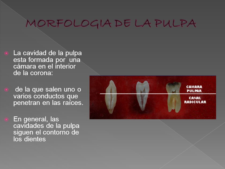 MORFOLOGIA DE LA PULPA La cavidad de la pulpa esta formada por una cámara en el interior de la corona: