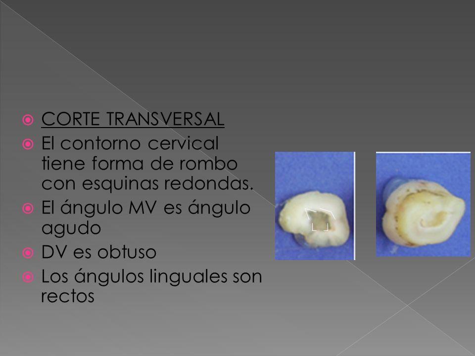 CORTE TRANSVERSAL El contorno cervical tiene forma de rombo con esquinas redondas. El ángulo MV es ángulo agudo.
