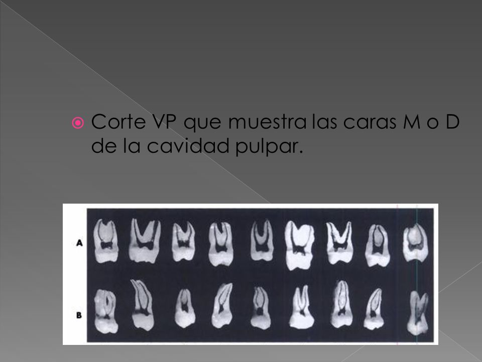 Corte VP que muestra las caras M o D de la cavidad pulpar.