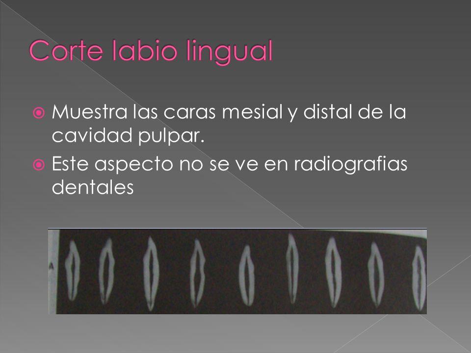 Corte labio lingualMuestra las caras mesial y distal de la cavidad pulpar.