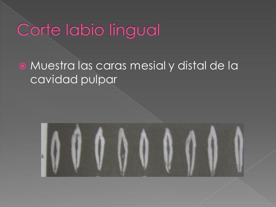 Corte labio lingual Muestra las caras mesial y distal de la cavidad pulpar