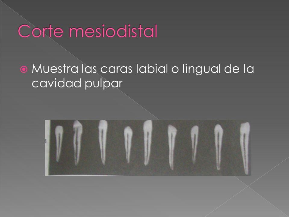 Corte mesiodistal Muestra las caras labial o lingual de la cavidad pulpar