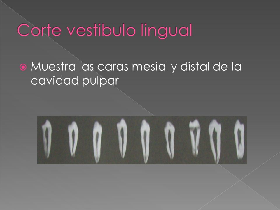 Corte vestibulo lingual