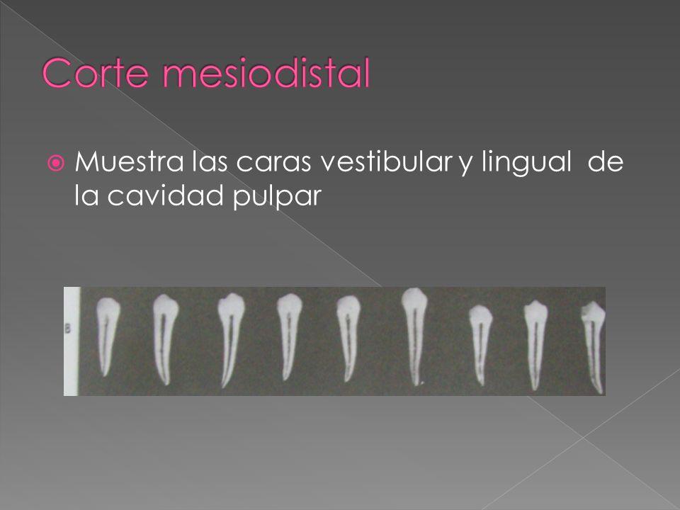 Corte mesiodistal Muestra las caras vestibular y lingual de la cavidad pulpar
