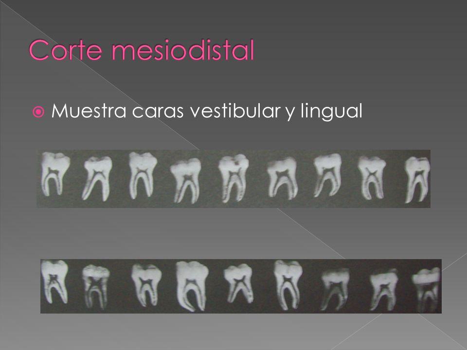 Corte mesiodistal Muestra caras vestibular y lingual