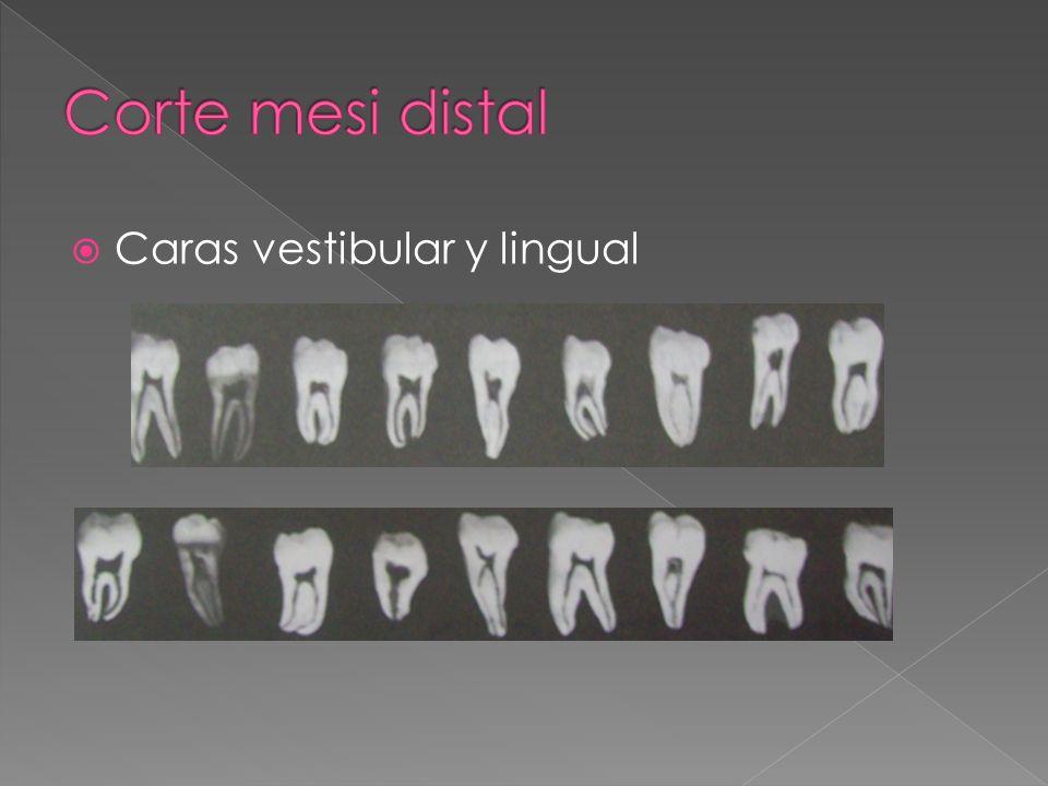 Corte mesi distal Caras vestibular y lingual