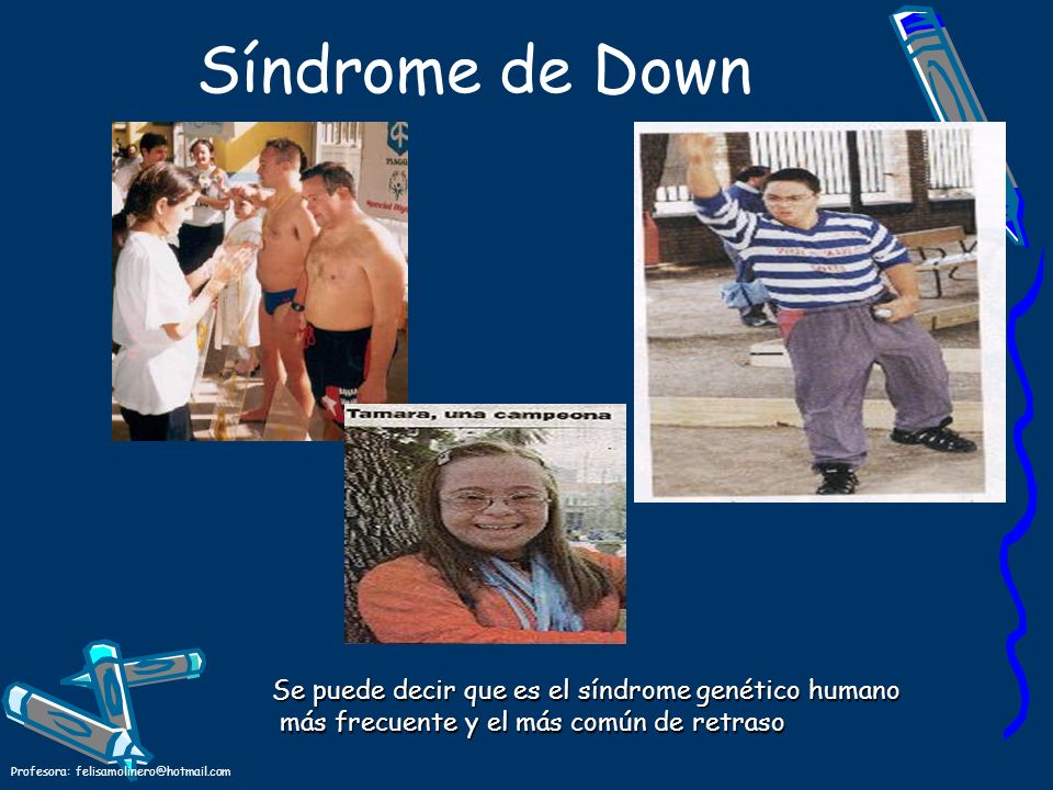 Síndrome de Down Se puede decir que es el síndrome genético humano