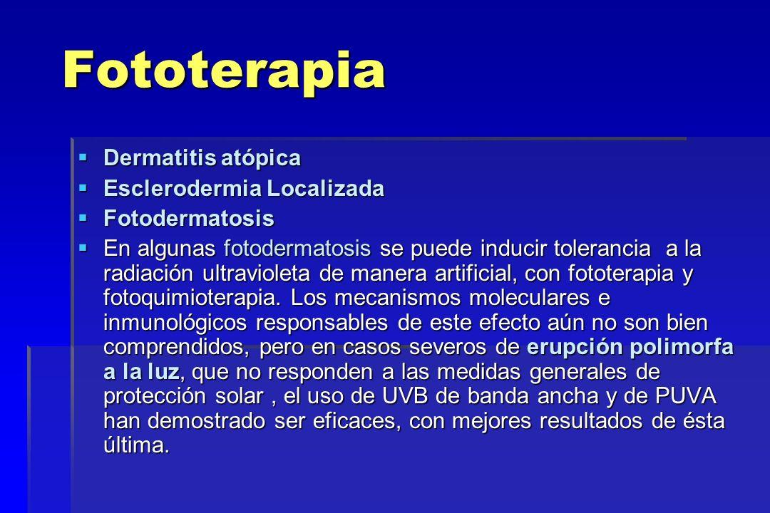 Fototerapia Dermatitis atópica Esclerodermia Localizada Fotodermatosis