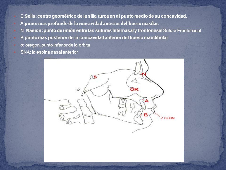 S:Sella: centro geométrico de la silla turca en al punto medio de su concavidad.