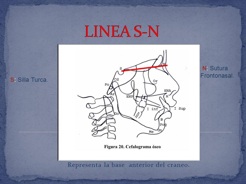 Representa la base anterior del craneo.