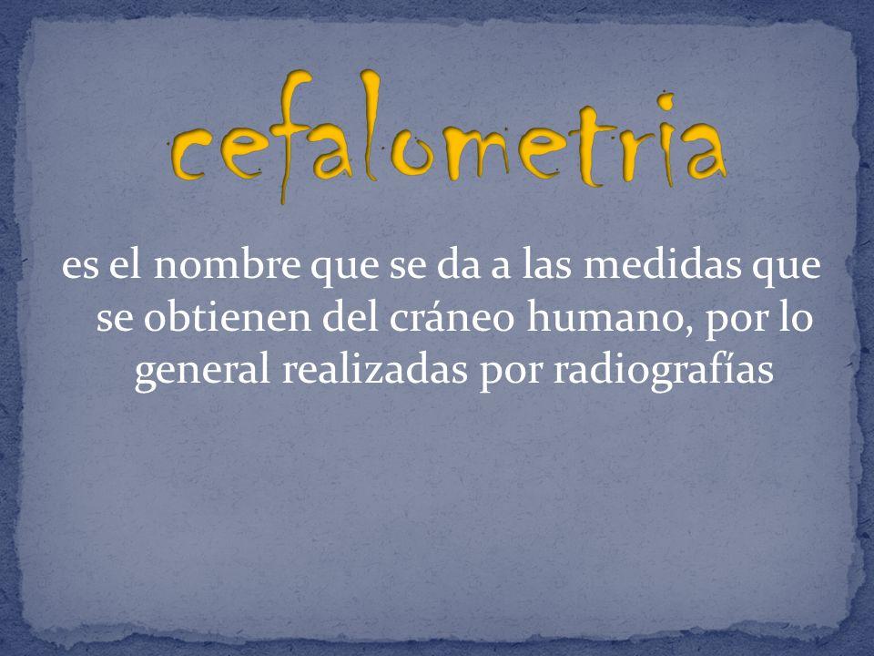cefalometria es el nombre que se da a las medidas que se obtienen del cráneo humano, por lo general realizadas por radiografías.