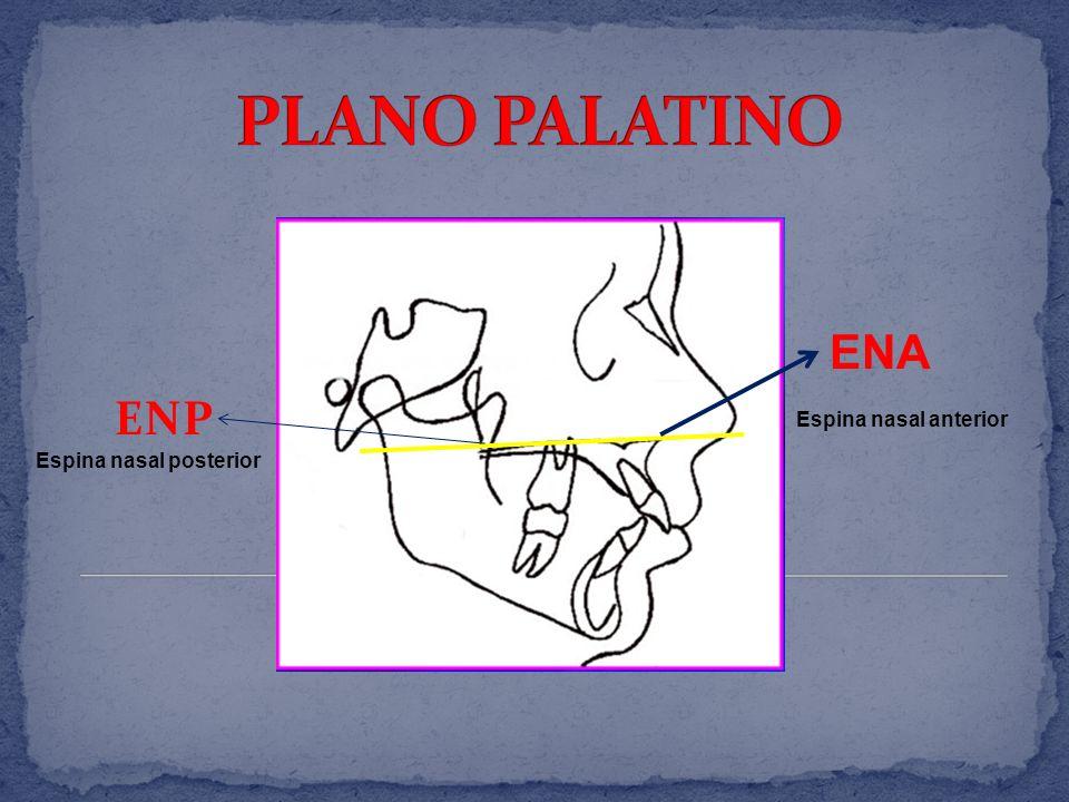 PLANO PALATINO ENA ENP Espina nasal anterior Espina nasal posterior