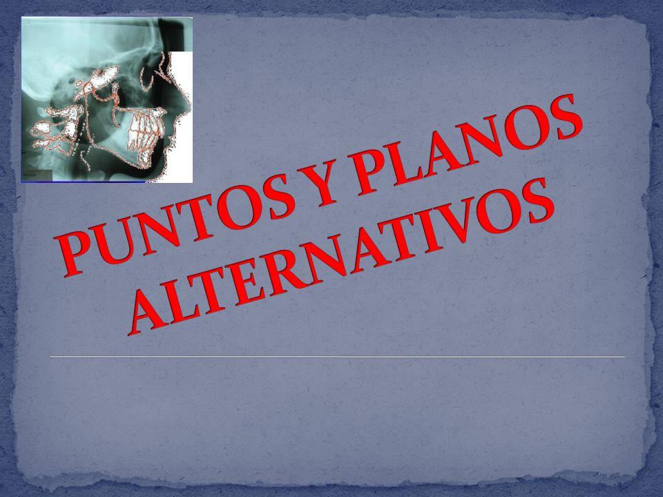 PUNTOS Y PLANOS ALTERNATIVOS