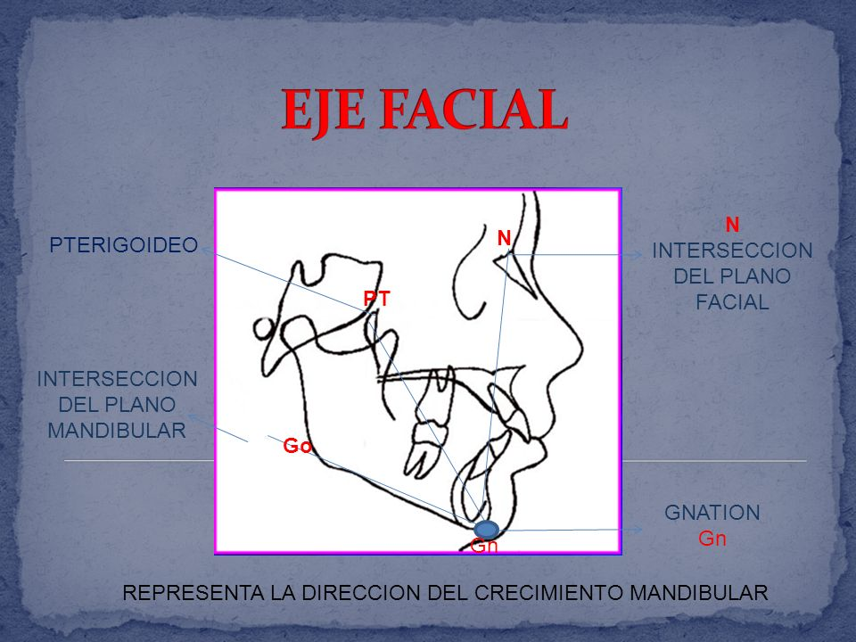 EJE FACIAL N N INTERSECCION DEL PLANO FACIAL PTERIGOIDEO PT