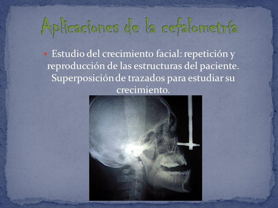 Aplicaciones de la cefalometría