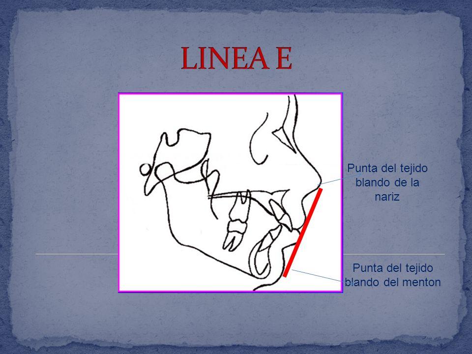 LINEA E Punta del tejido blando de la nariz