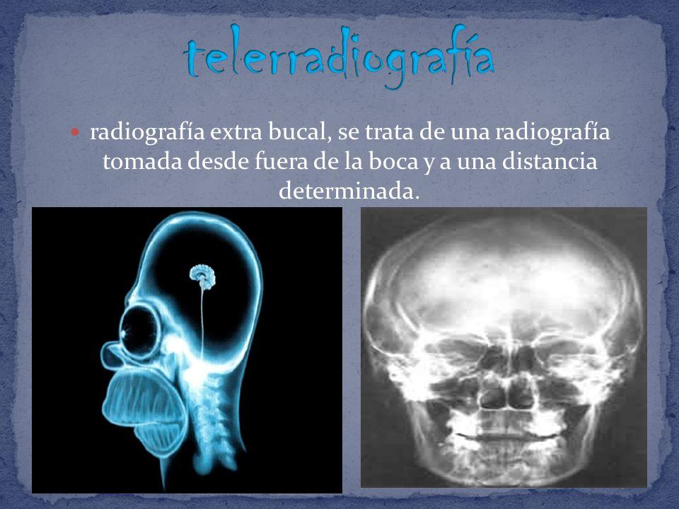 telerradiografíaradiografía extra bucal, se trata de una radiografía tomada desde fuera de la boca y a una distancia determinada.