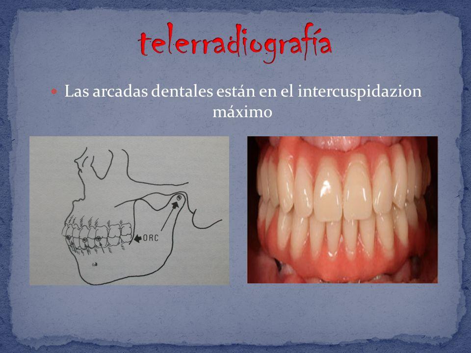 Las arcadas dentales están en el intercuspidazion máximo