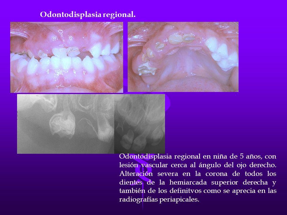 Odontodisplasia regional.