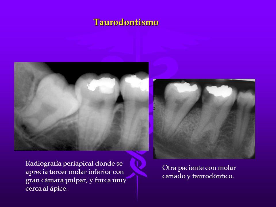 Taurodontismo Radiografía periapical donde se aprecia tercer molar inferior con gran cámara pulpar, y furca muy cerca al ápice.