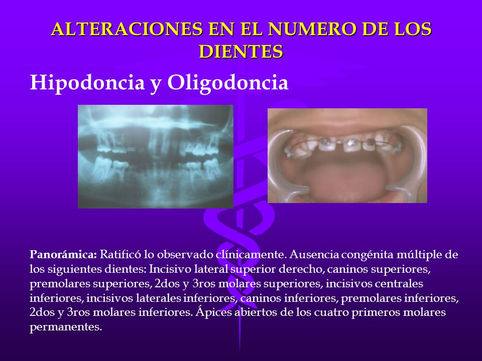Malformaciones dentales ppt video online descargar for Numero de dientes