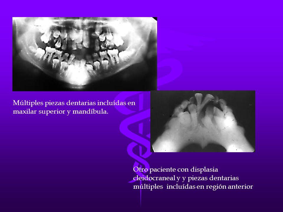Múltiples piezas dentarias incluídas en maxilar superior y mandíbula.