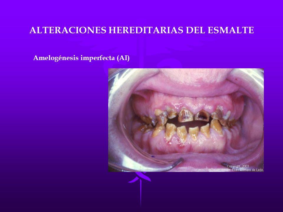 ALTERACIONES HEREDITARIAS DEL ESMALTE