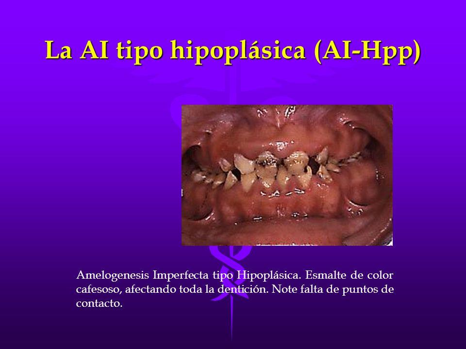 La AI tipo hipoplásica (AI-Hpp)