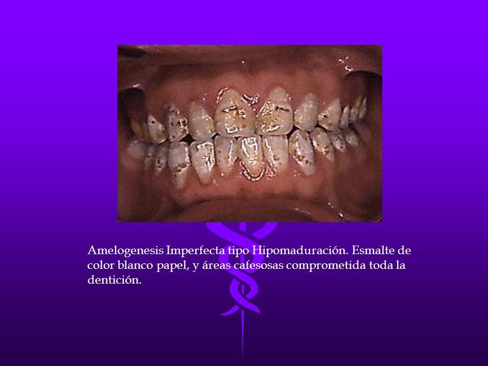 Amelogenesis Imperfecta tipo Hipomaduración