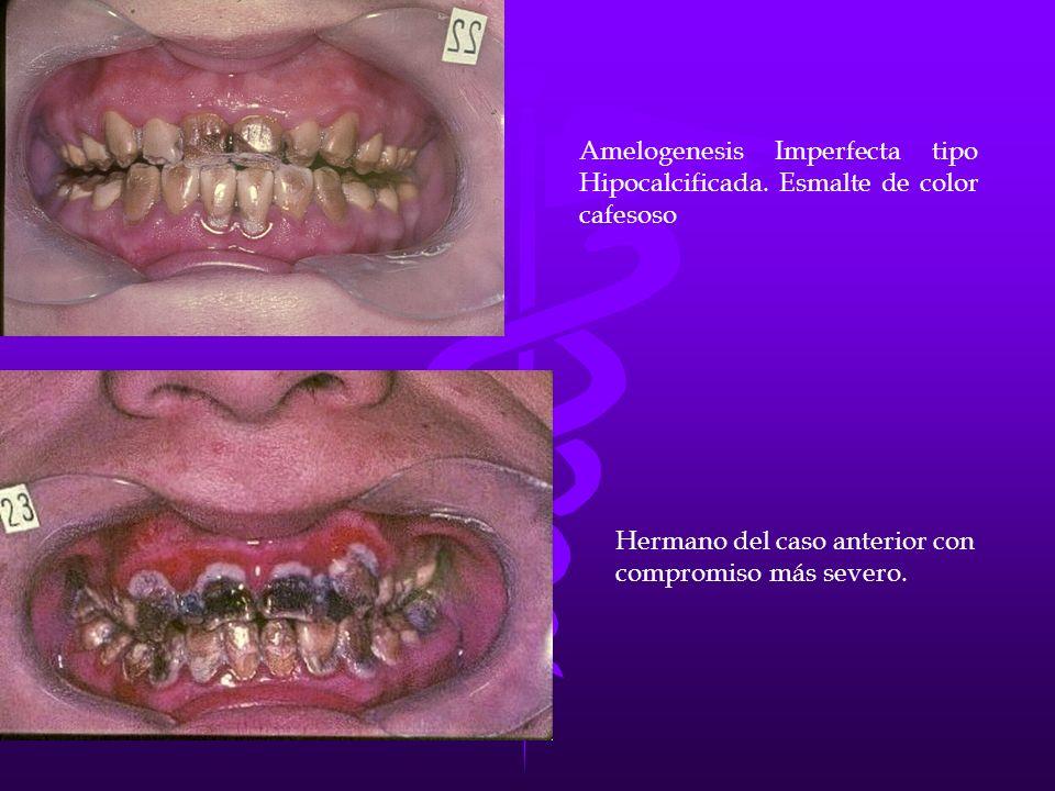 Amelogenesis Imperfecta tipo Hipocalcificada. Esmalte de color cafesoso