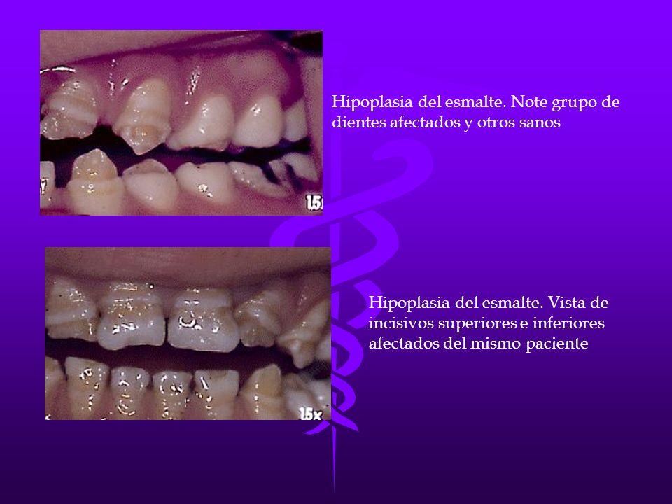 Hipoplasia del esmalte. Note grupo de dientes afectados y otros sanos
