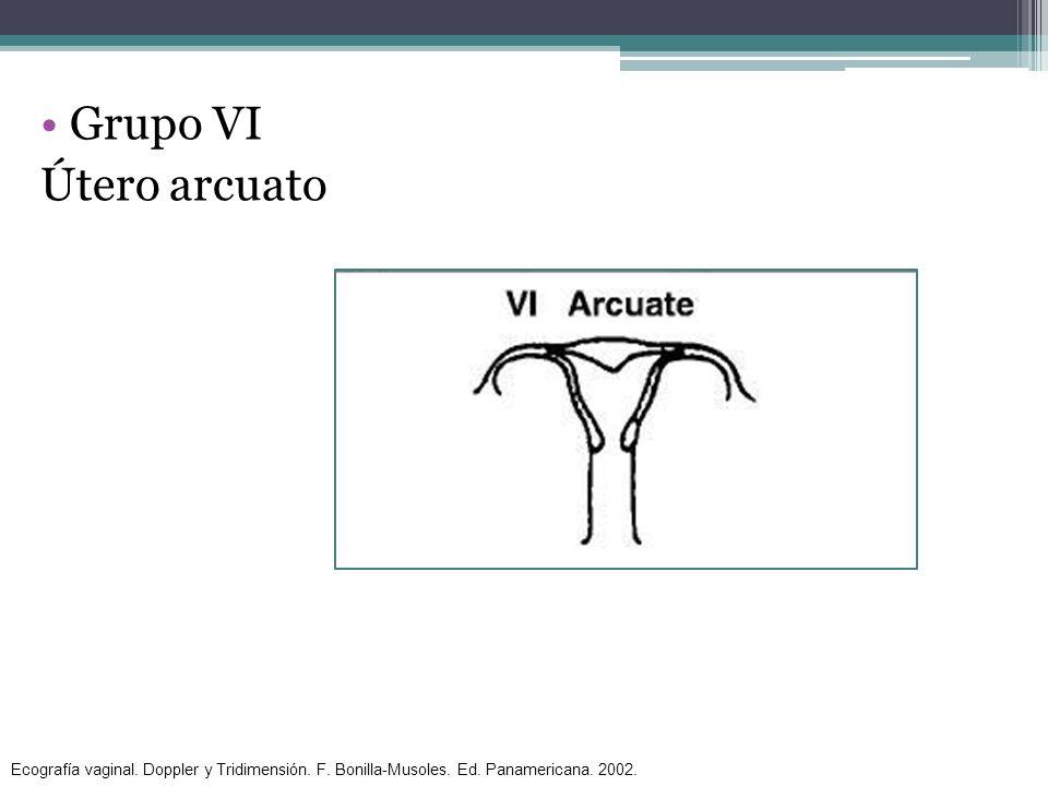 Grupo VI Útero arcuato. Ecografía vaginal. Doppler y Tridimensión.